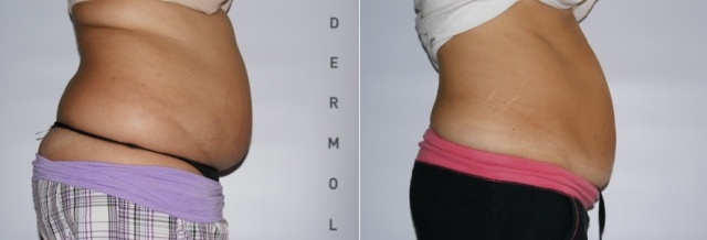 abdomen_before_after2_small