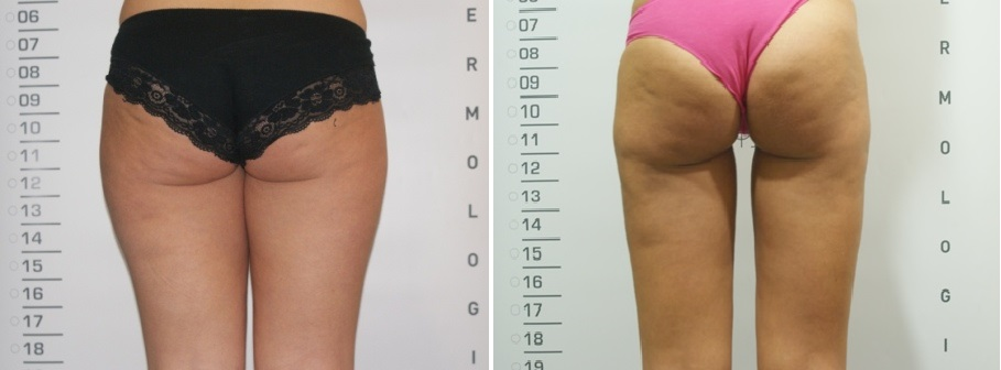 before_after_smartlipo