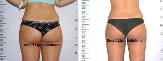 before_after_smartlipo1