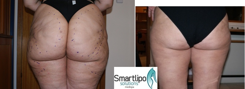 cellulite_before_after_smartlipo