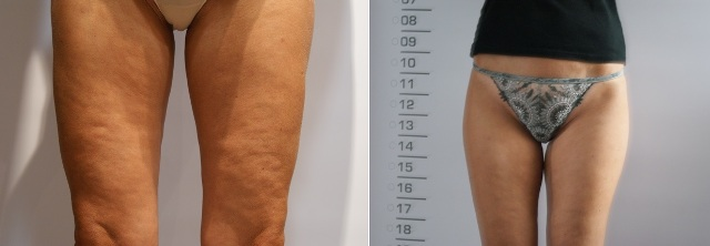 cellulite_before_after_smartlipo2