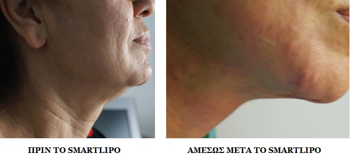 chin_before_after_smartlipo