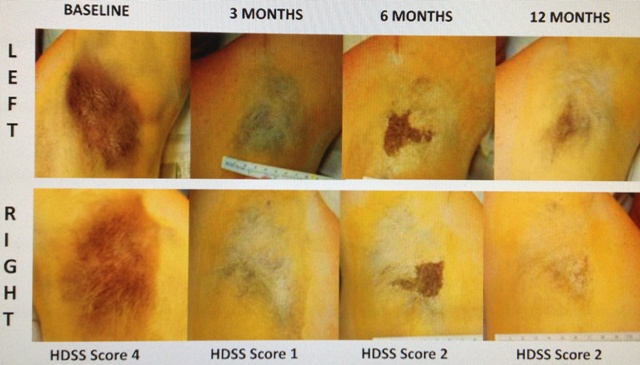 hyperidrosis_before_after