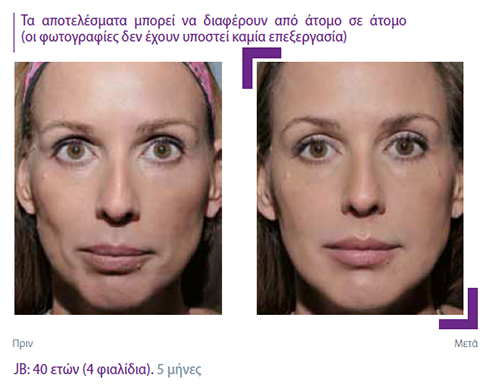 sculptra_before_after3